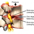 Boca Raton Spine Degenerative Disc